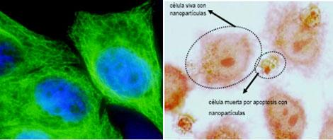 Células tumorales con nanopartículas magnéticas.| A. Villanueva