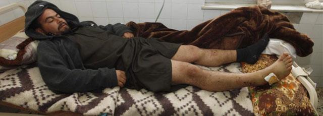 Un libio que afirma haber sido torturado en un hospital de Trípoli. | Reuters