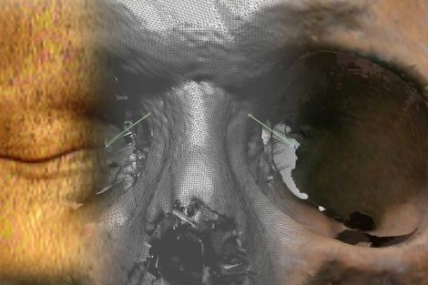 En tres segmentos, la piel, un TAC facial en 3D y el cráneo. | U.G.