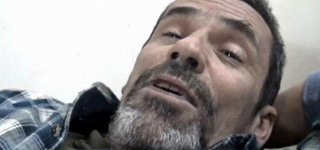 Conroy, herido en Homs. | Reuters