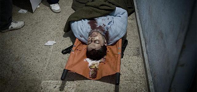 Un sirio muerto en un hospital improvisado en Bab Amro.   Afp