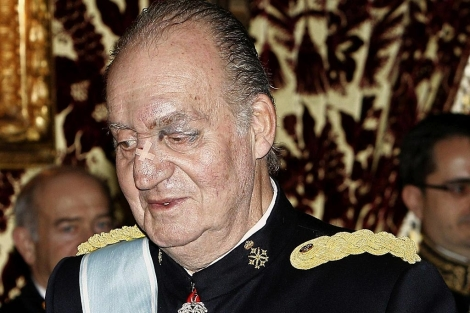 El monarca, tras sufrir un 'accidente doméstico' el pasado noviembre. | Efe