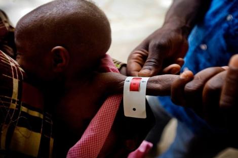 Un sanitario mide el brazo de un niño desnutrido. | Unicef.