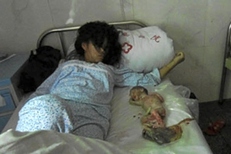 Feng Jianmei, junto a su hijo de siete meses muerto tras ser obligada a abortar. | BBS.HSW.CN