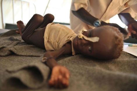 Un niño desnutrido en una clínica de MSF para refugiados en Jamam | AFP