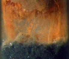 Imagen ampliada de la bacteria. | N.R.P.
