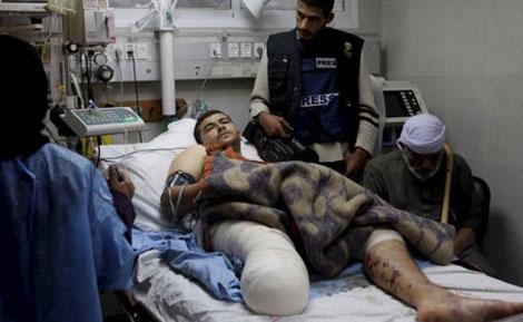 El periodista palestino Khader al-Zahhar en el hospital. ((Anne Paq)