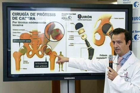 El doctor Villamor explicando con un gráfico la prótesis implantada, en el hospital Quirón.   Efe