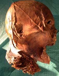 Cabeza momificada de Enrique IV.   CSIC