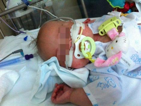 Celia, de nueve meses, padece una cardiopatía congénita. | E. M.