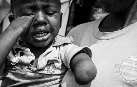 Patrick, nacido sin pies ni manos por una malformación. | Raquel Villaécija