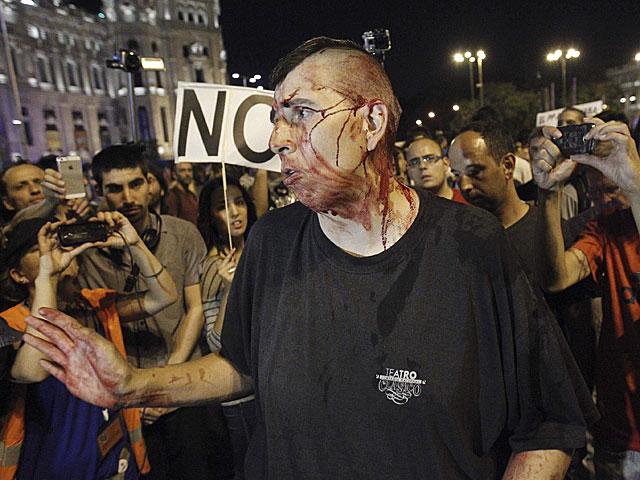 Uno de los manifestantes heridos anoche. | Kote Rodrigo / Efe