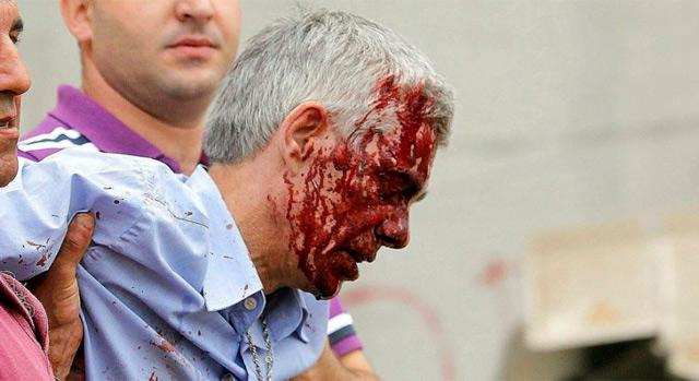 Garzón Amo, momentos después del accidente.   Efe/La Voz de Galicia/X-A-Soler/M. Ferreirós