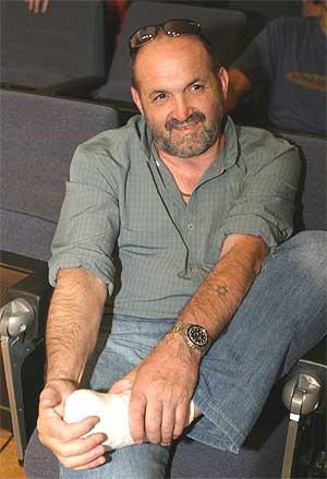 Juanito Oiarzabal enseña el vendaje de un pie. (Foto: CONCHITINA)