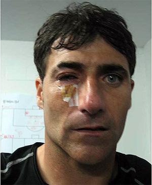 Armando, portero del Athletic. (Foto: www.athletic-club.net)
