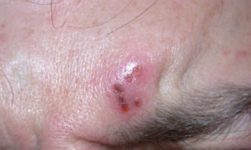 Sintomas de los herpes en la piel
