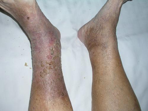 infeccion piernas