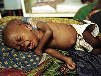 Un niño enfermo de malaria en un hospital de Maputo, Mozambique (imagen de archivo | AP)