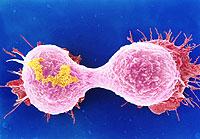 Vista al microscopio de células cancerígenas durante el proceso de proliferación de un tumor (Foto: Science Photo Library)