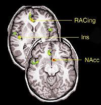 Tres de las zonas cerebrales que regristraron gran actividad durante le 'efecto placebo'. (Foto: U. de Michigan)