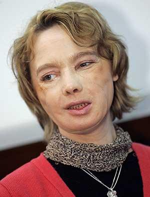 Isabelle, durante la rueda de prensa en el Hospital de Amiens. (Foto: AP | Michel Spingler)
