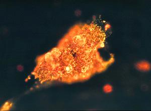 Célula maligna iluminada por el oro (Foto: Georgia Institute of Technology)
