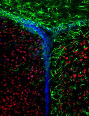 Células del cerebro: neuronas, en rojo, astrocitos en verde y núcleos en azul. (Foto: Sean Morrison   Nature)