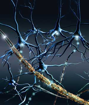 En primer plano representación de axones con las vainas de mielina deterioradas por la enfermedad. (Imagen: Schering)