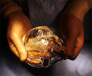 Un cirujano muestra una prótesis de silicona (Foto: Linda Bartlett   NCI)