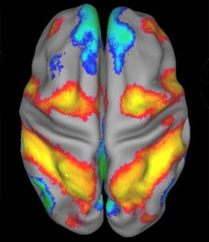 Imagen de RMN funcional de un cerebro en reposo. (Cortesía de Marc Raichle)