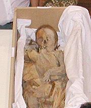 Detalle de la momia (Foto: Hospital Clínic)