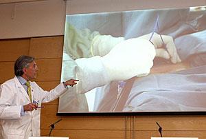 El doctor Fernández-Avilés explica el proceso. (Foto: EFE) Vea el vídeo de la intervención