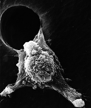 Imagen de una célula tumoral (Foto: NCI)
