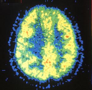 Imagen de un cerebro normal obtenida con un PET. (Foto: NCI)