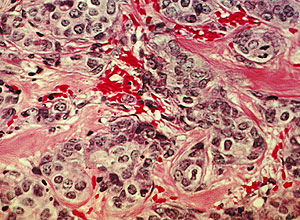 Tejido mamario canceroso (Foto: National Cancer Institute)