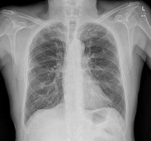Radiografía de un paciente afectado por EPOC. (Foto: El Mundo)
