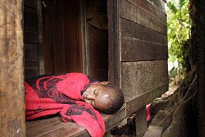 Una niña afectada por malaria en Papua Nueva Guinea (Foto: David Longstreath | AP)