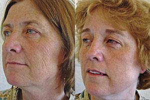 A la izquierda, gemela fumadora. (Foto: 'Archives of Dermatology')