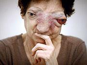 La mujer que pide la eutanasia (Foto: AFP)