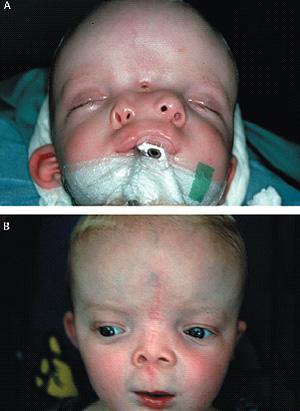 El niño operado en Heidelberg, antes y 12 meses después de la cirugía (Foto: The Lancet)