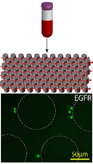 El microchip (imagen superior) está formado por orificios recubiertos con un anticuerpo que 'atrapa' a las células tumorales. Éstas (en verde) se quedan pegadas a estos cilindros cuando pasa la sangre. (Foto: NEJM ©2008)