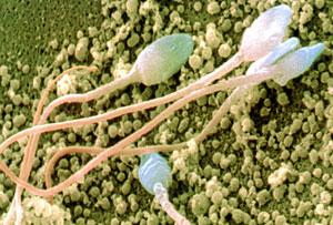 Esperma. (Foto: Science Photo Library)