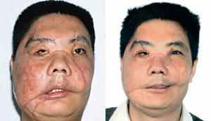 Imagen del paciente chino durante un episodio agudo de rechazo (izq.) y una vez controlada la reacción (drcha.). (Foto: 'The Lancet')