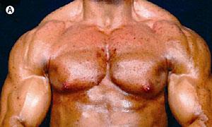 Tomar testosterona de efectos