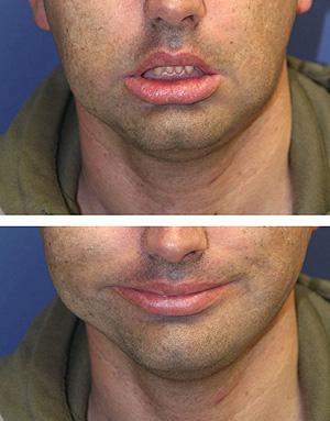 Isidoro Bejarano, antes y después de la operación (Foto: EFE)
