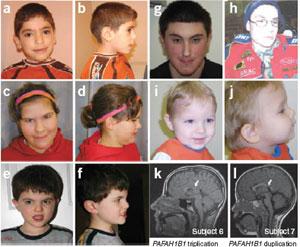 Sindromes geneticos