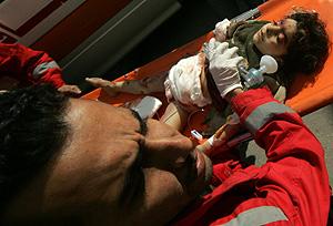 Un niño palestino es evacuado al hospital (Foto: AFP   Yasser Saymeh)