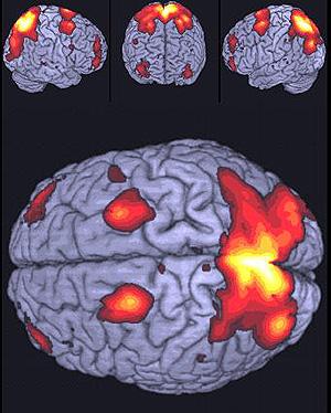 Imagen de resonancia magnética de un sujeto con talento matemático (Foto: Laboratorio de imagen Hospital Gregorio Marañón)