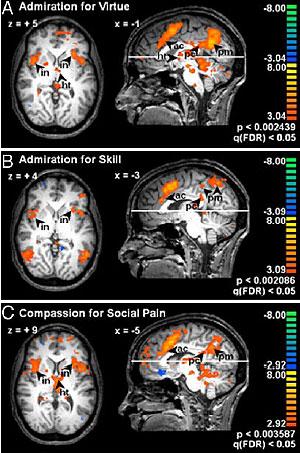 Los cerebros de los participantes en distintas situaciones (Foto: PNAS)