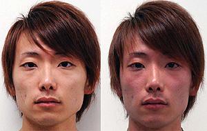 Un joven asiático de 22 años antes y después de beber alcohol (Foto: 'PLoS Medicine')